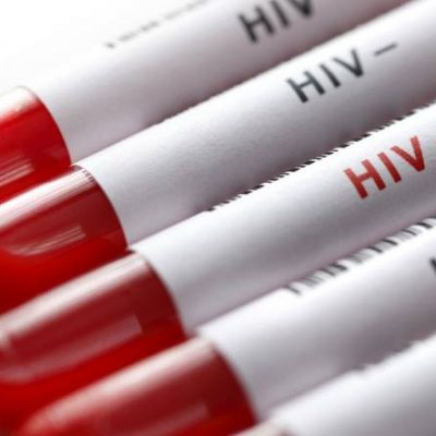 Enfermedades de Transmisión Sexual (ETS) – Prioritario VIH - SIDA