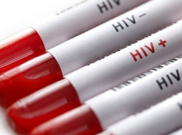 Enfermedades de Transmisión Sexual (ETS) – Prioritario VIH – SIDA